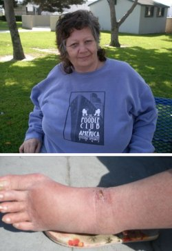 photo of Gail Shephard showing her injuries
